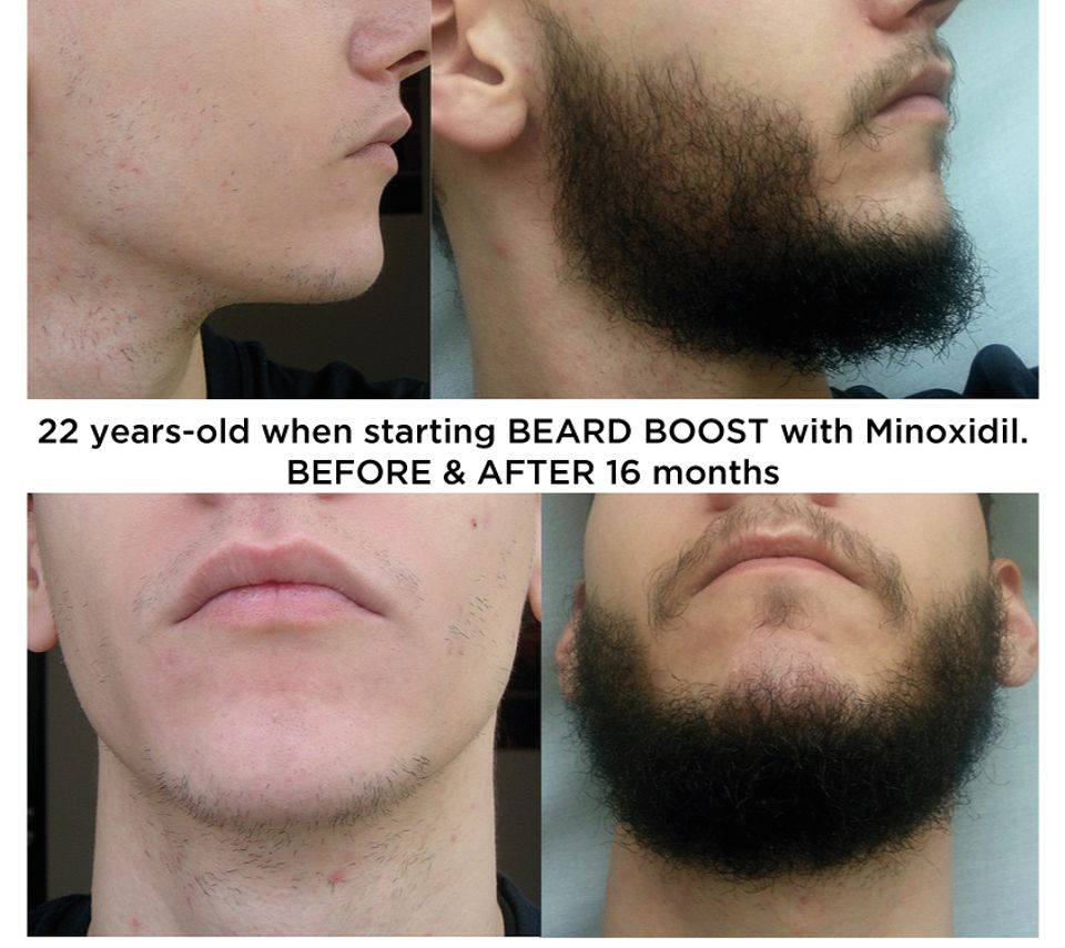 Details about 6 x FASTER BEARD GROWTH LARGE SPRAY BOTTLE WITH MINOXIDIL -  FASTER THICK GROWTH